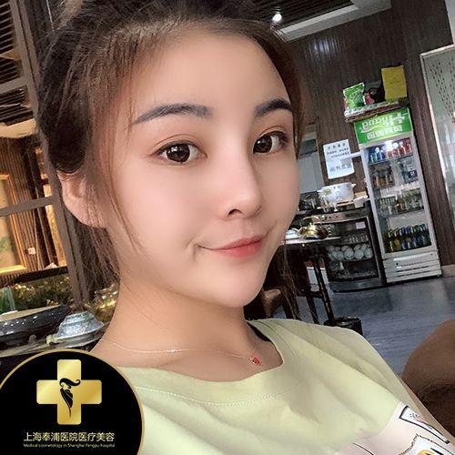 上海奉浦鼻综合+额头填充 项目分类:鼻部整形 鼻部综合